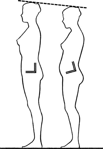 PostureFoundationGarments04fig1